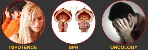 el estrés puede causar síntomas de prostatitis