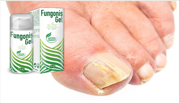 fungonis gel, fungal infection