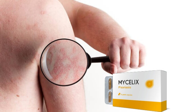 mycelix capsules, psoriasis skin
