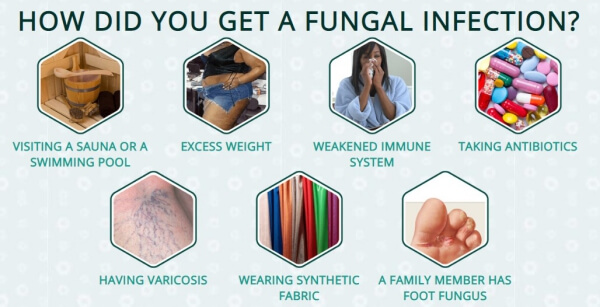 fungal infection, causes