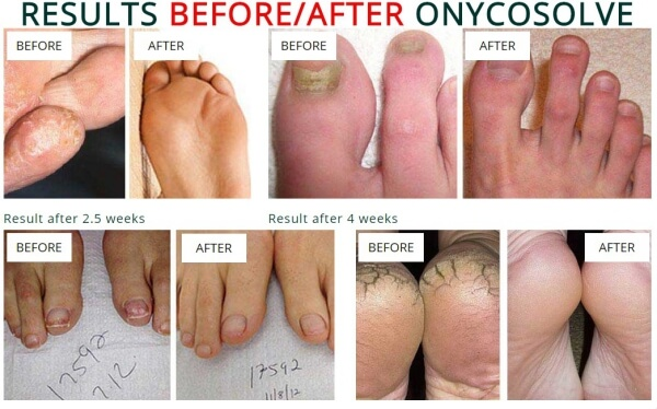 Onycosolve spray, effects, results, fungal infections