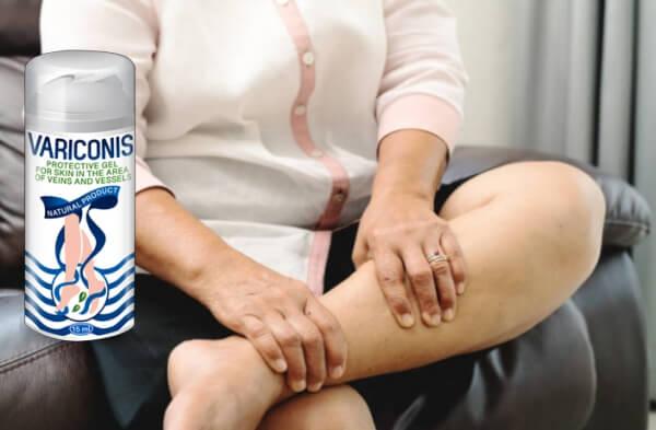 legs, veins, variconis gel