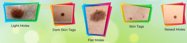 Moles, Skin Tags and Warts